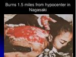 burns 1 5 miles from hypocenter in nagasaki