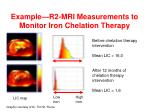 example r2 mri measurements to monitor iron chelation therapy