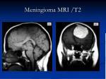 meningioma mri t2