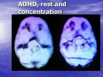 adhd rest and concentration
