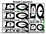 broad ligament1