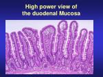 high power view of the duodenal mucosa