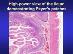 high power view of the ileum demonstrating peyer s patches