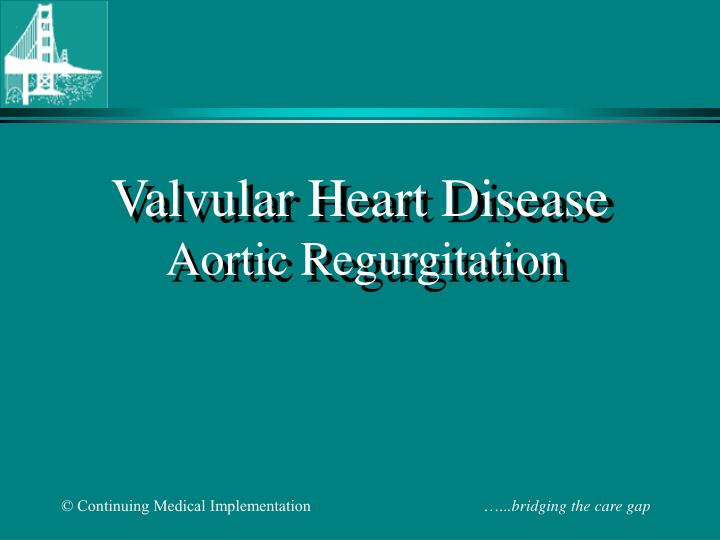valvular heart disease aortic regurgitation n.
