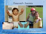 fanconi s anemia