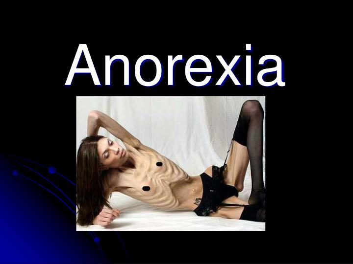 anorexia n.