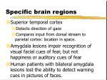 specific brain regions