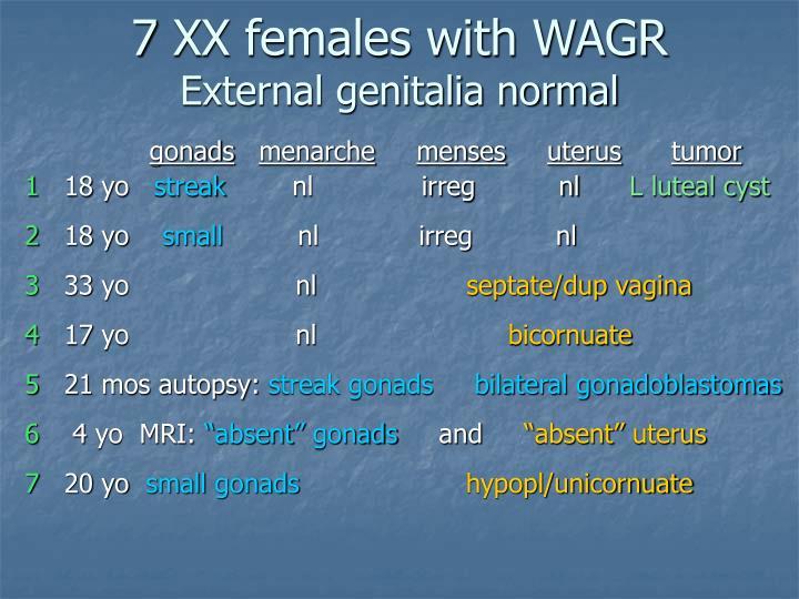 7 XX females with WAGR