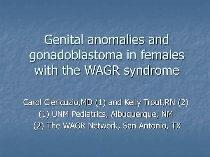 genital anomalies and gonadoblastoma in females with the wagr syndrome n.