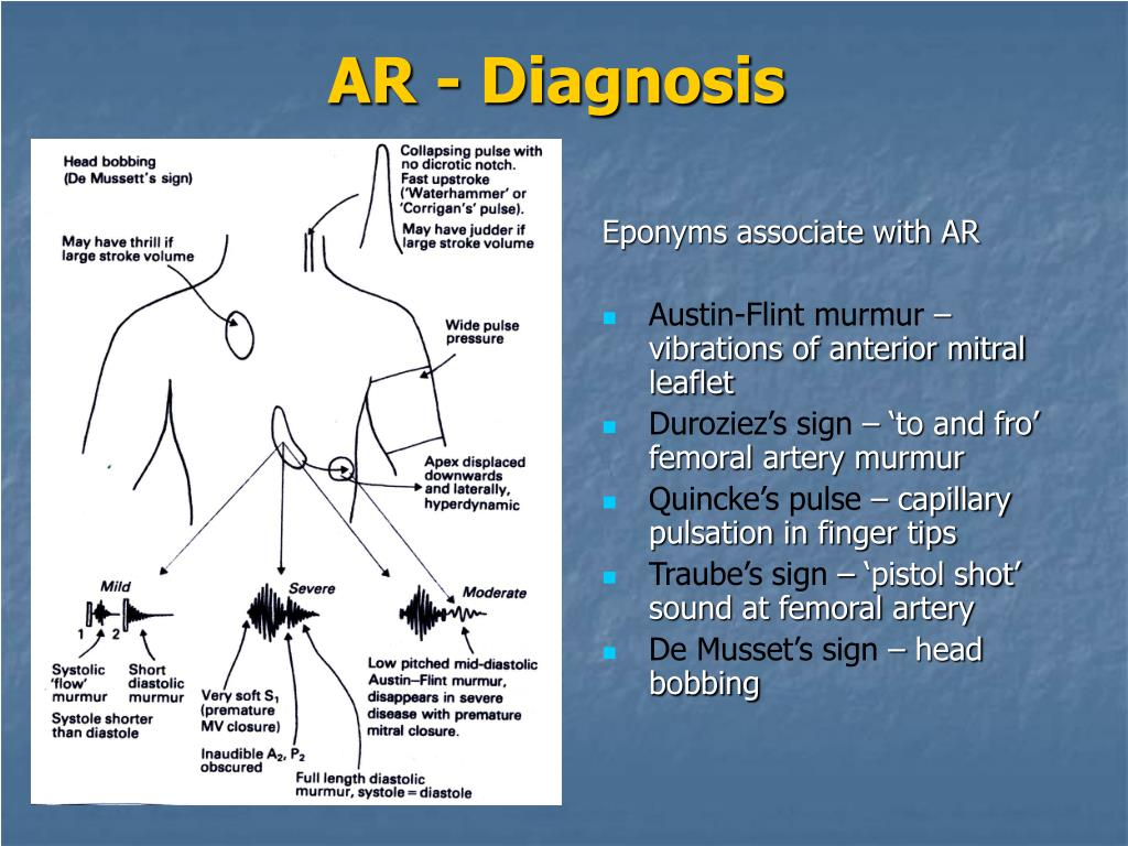 PPT - AORTIC VALVE DISEASE PowerPoint Presentation - ID:1195841