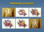 minimally invasive