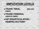 amputation levels