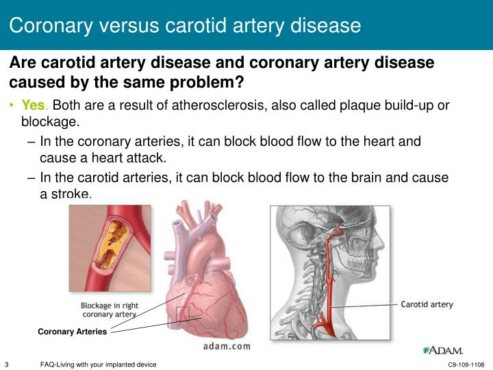 report on the epidemiology of coronary artery disease essay Peripheral artery disease is associated with many of the same risk factors as atherosclerotic symptoms and measures of peripheral artery disease in epidemiology it was recognized as long estimates of pad incidence are reported somewhat less frequently in the literature, with more data.