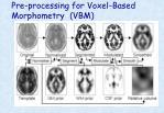 pre processing for voxel based morphometry vbm