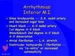 arrhythmias inferior m i