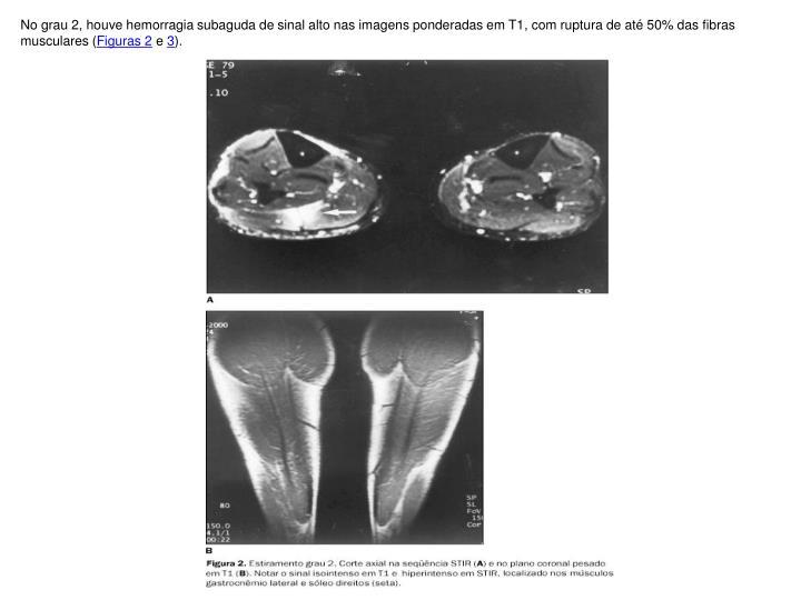 No grau 2, houve hemorragia subaguda de sinal alto nas imagens ponderadas em T1, com ruptura de até 50% das fibras musculares (