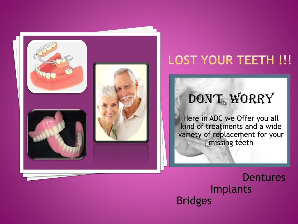 Lost Your Teeth !!!