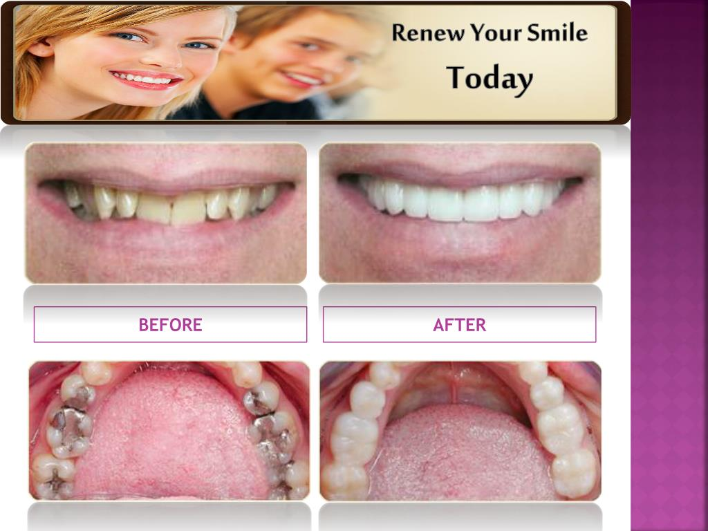 Renew Your Smile