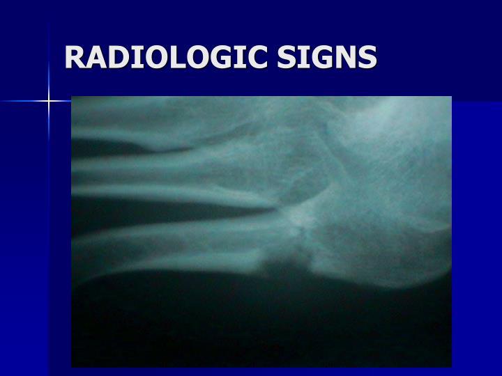 RADIOLOGIC SIGNS