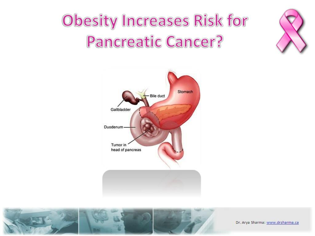 obesity increases risk for pancreatic cancer l.