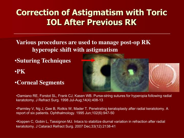 Correction of Astigmatism with Toric IOL After Previous RK
