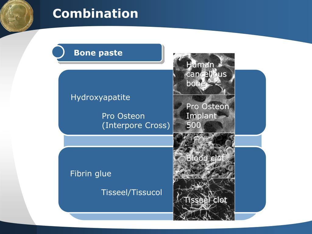 PPT - Facial contour corrections with calcium hydroxyapatite
