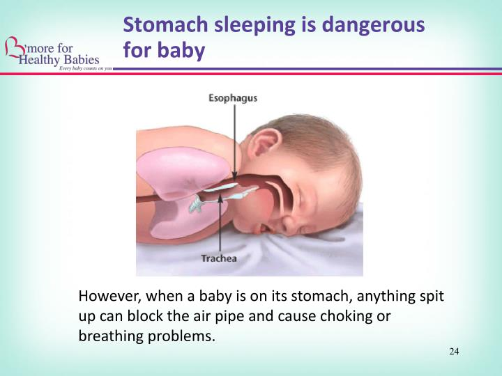 Stomach sleeping is dangerous for baby