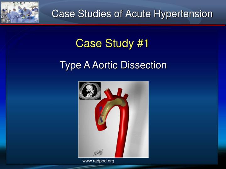 case study of an acute mi event Patients of acute myocardial infarction and fifty age, sex and hemoglobin matched controls were taken in study 25 males and 25 females were taken in both case and control group all subjects were subjected to detailed.