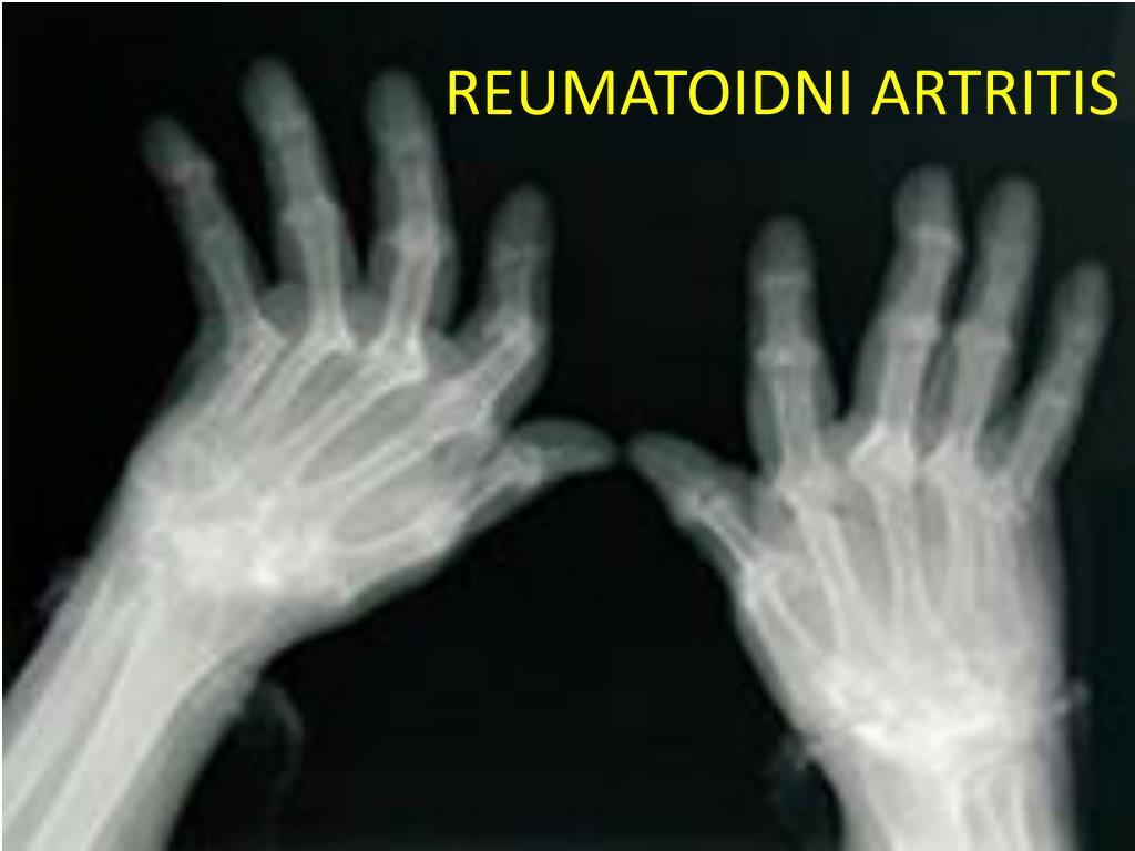 reumatoidni artritis l.