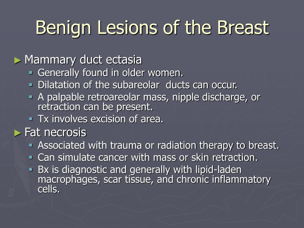 PPT - Breast Disease PowerPoint Presentation - ID:1228734