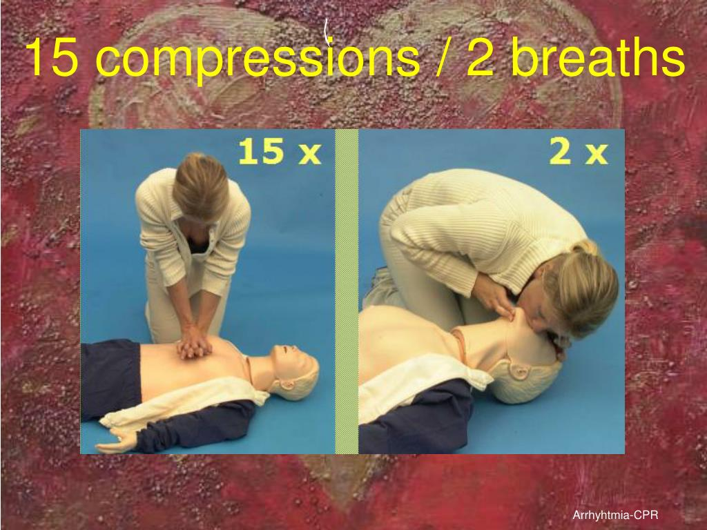 15 compressions / 2 breaths