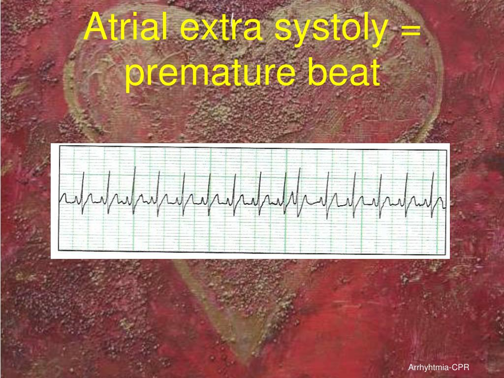 Atrial extra systoly = premature beat