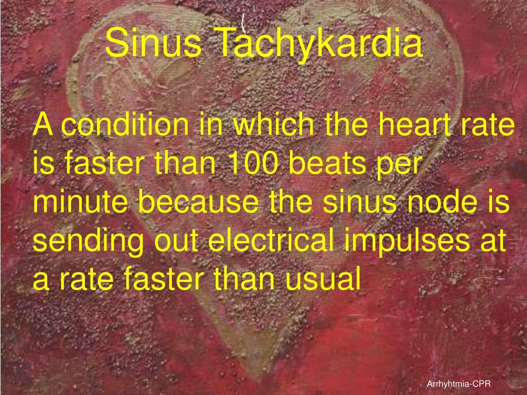 Sinus Tachykardia