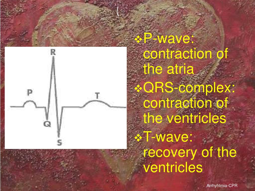 P-wave: contraction of the atria