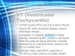 vt ventricular tachycardia
