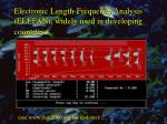 electronic length frequency analysis elefan widely used in developing countries