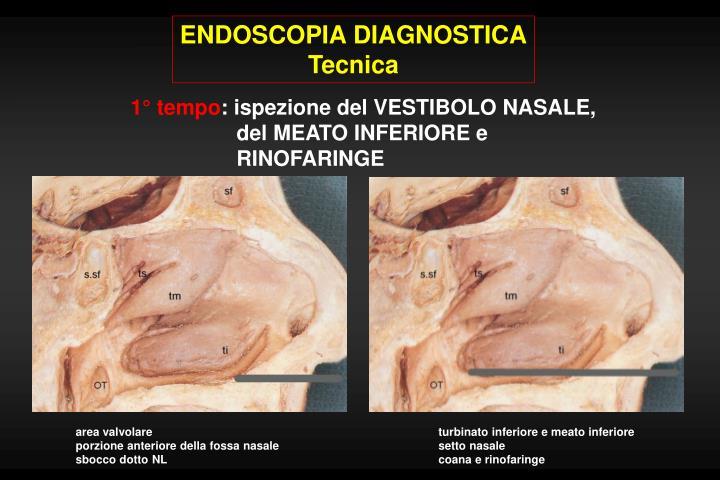 ENDOSCOPIA DIAGNOSTICA