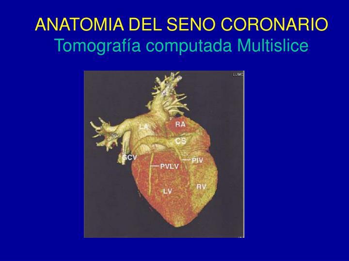 PPT - TERAPIA DE RESINCRONIZACION CARDIACA Estado Actual Dr. Sergio ...
