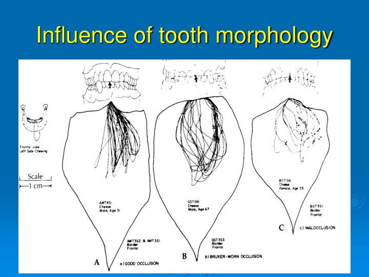 Influence of tooth morphology
