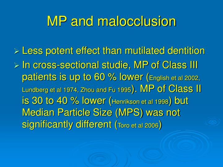 MP and malocclusion