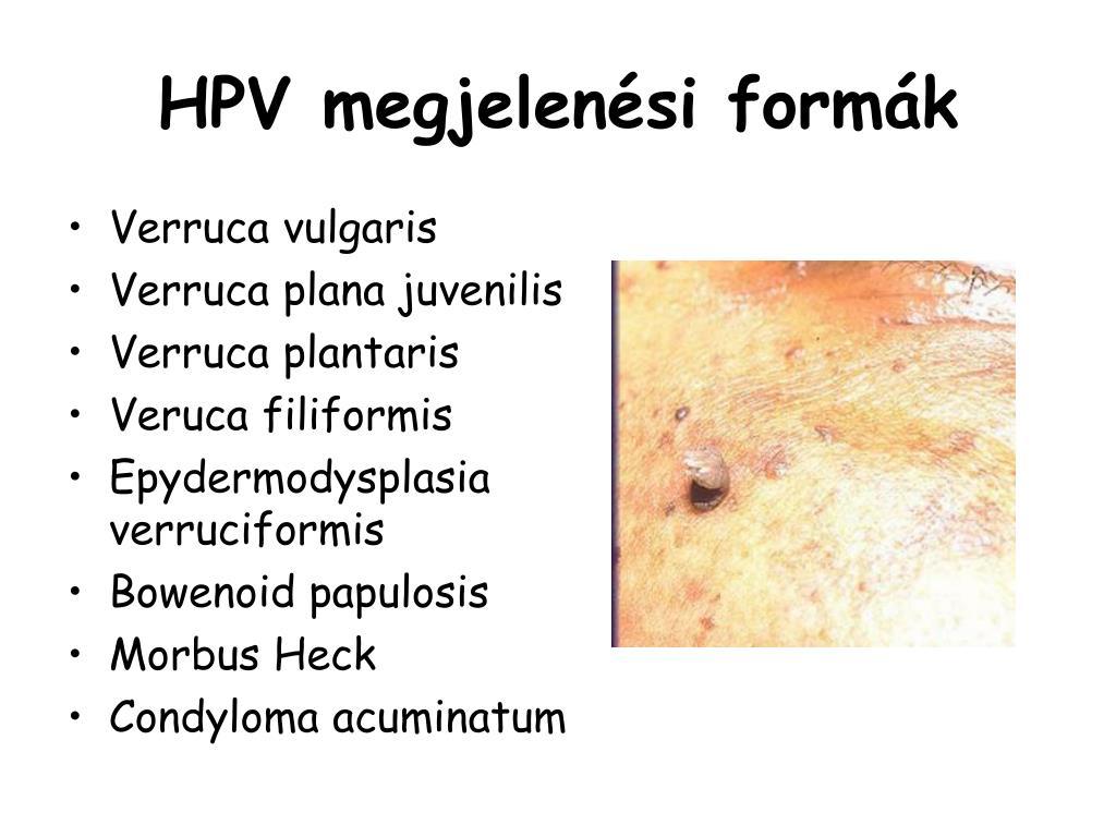 rák her2 pozitív a sebész eltávolítja a papillómákat
