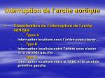 interruption de l arche aortique