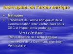 interruption de l arche aortique1
