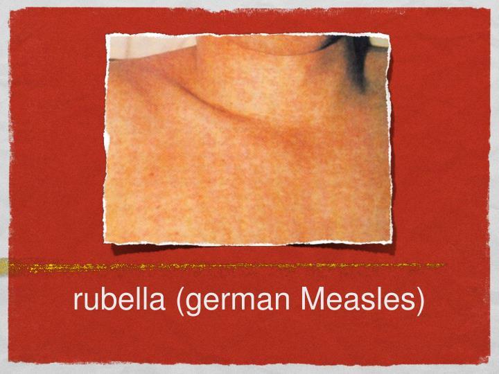 rubella (german Measles)