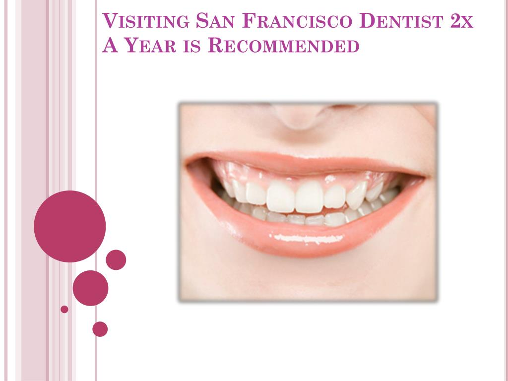 visiting san francisco dentist 2x a year is recommended l.