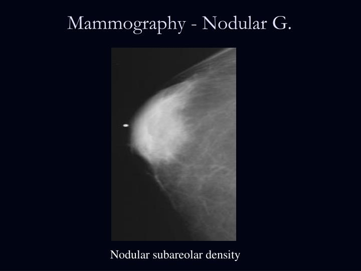 Mammography - Nodular G.