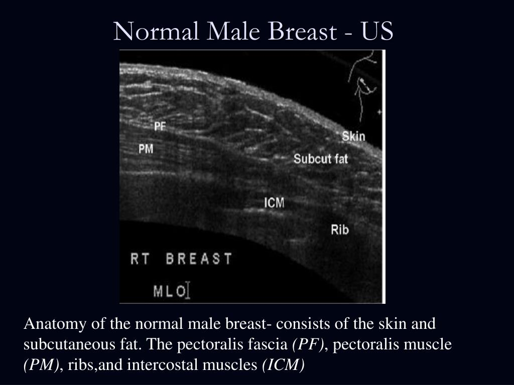 PPT - The Male Breast PowerPoint Presentation - ID:1262565