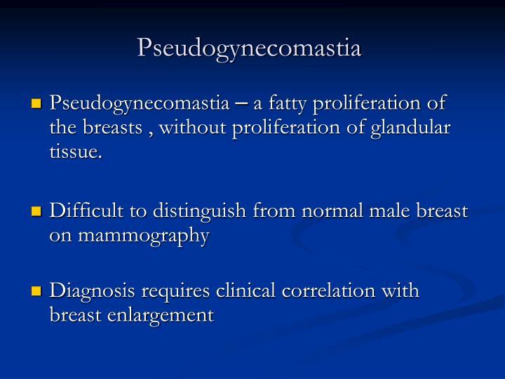 Pseudogynecomastia