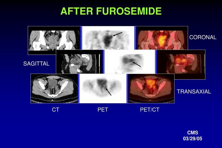 AFTER FUROSEMIDE