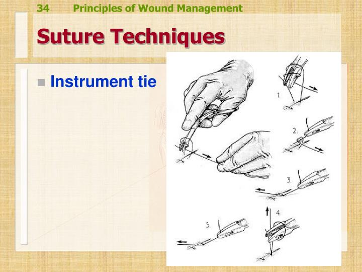Suture Techniques